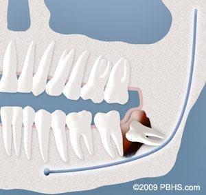 Wisdom Teeth Cyst Formation