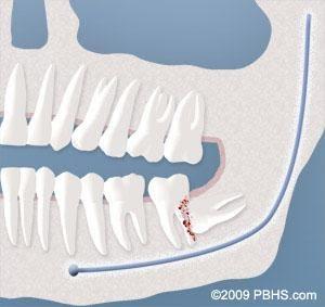 Wisdom Teeth Damage to Adjacent Teeth
